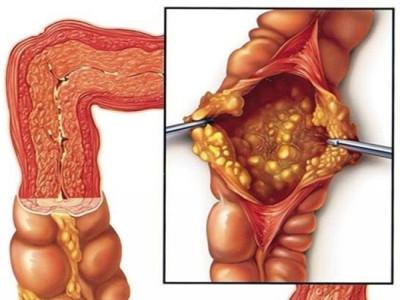 Biểu hiện của viêm đại tràng báo động xử lý ngay tránh biến chứng